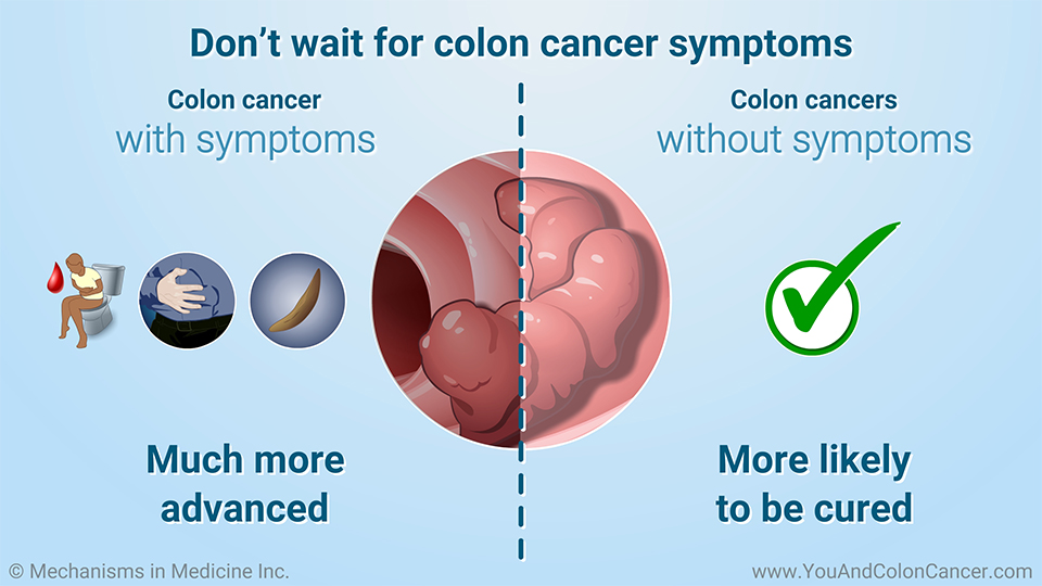 Don't wait for colon cancer symptoms