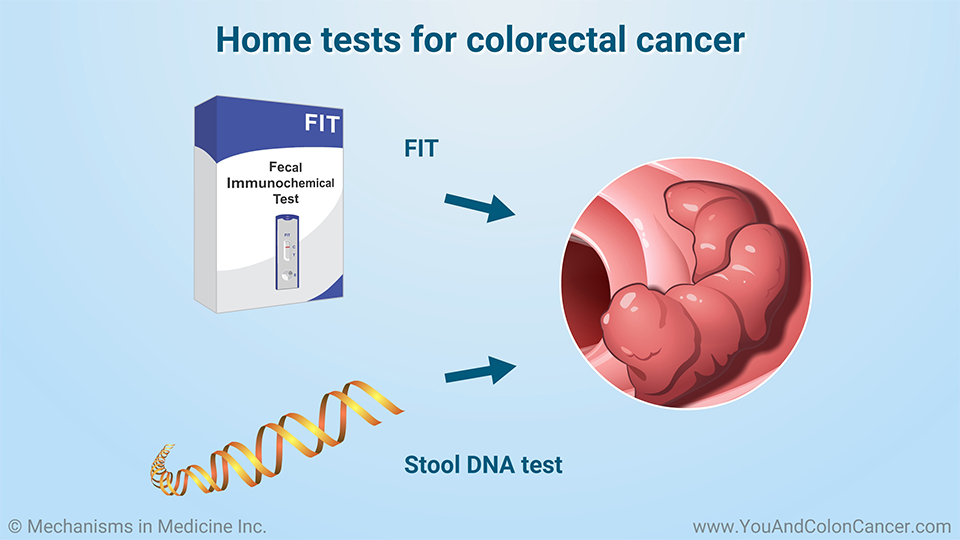 Home tests for colorectal cancer