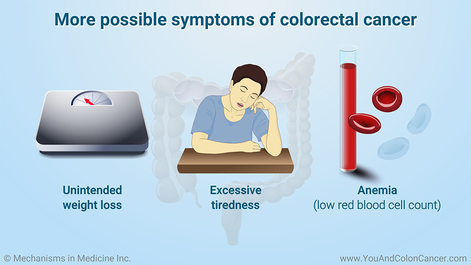 More possible symptoms of colorectal cancer