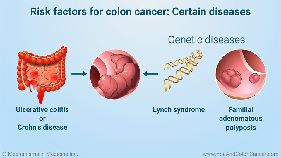 Risk factors for colon cancer: Certain diseases