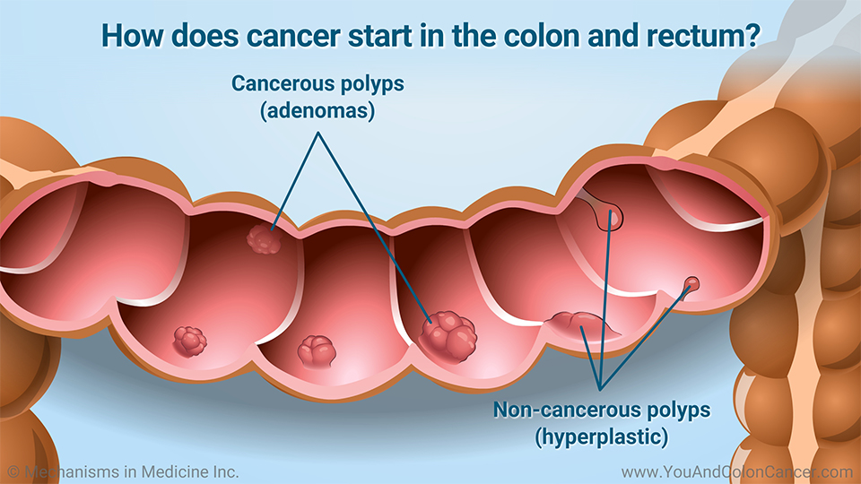 How does cancer start in the colon and rectum?