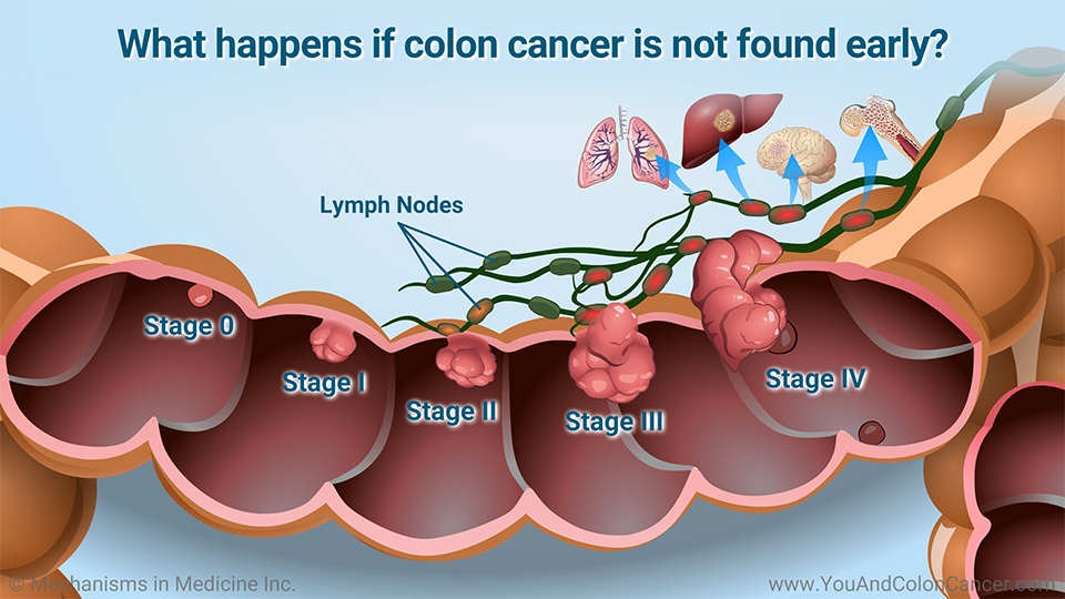 What happens if colon cancer is not found early?