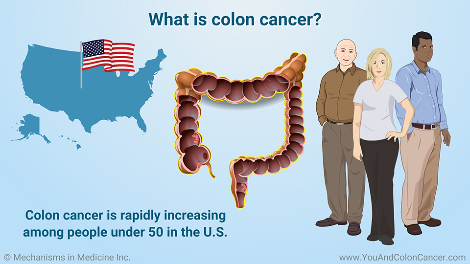 What is colon cancer?