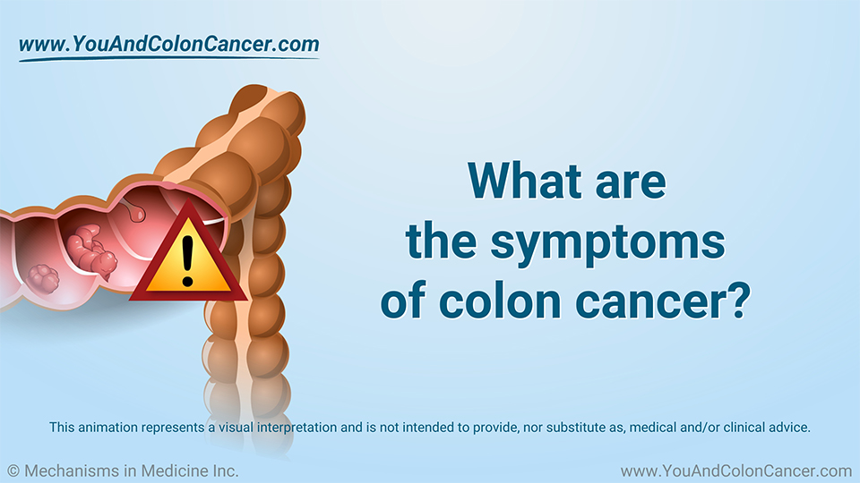Slide Show - What are the Symptoms of Colon Cancer?